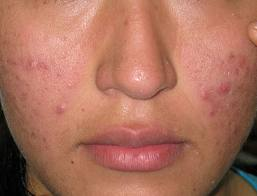 Healthy Media-New and Natural Ways to Remove Acne Scars