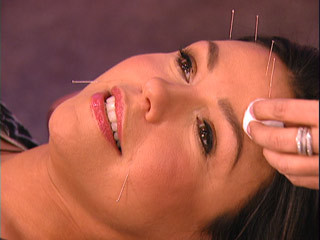 Acne Acupuncture